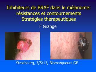 Inhibiteurs de BRAF dans le mélanome: résistances et contournements Stratégies thérapeutiques
