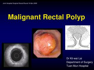 Malignant Rectal Polyp