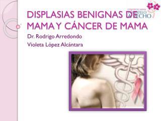DISPLASIAS BENIGNAS DE MAMA Y C NCER DE MAMA