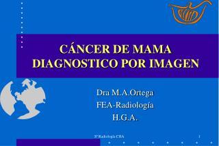 C NCER DE MAMA DIAGNOSTICO POR IMAGEN