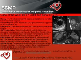 Case of the week 08-07 CMR and echo in LVNC