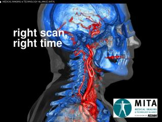 right scan,  right time