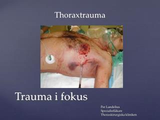 Thoraxtrauma Per Landelius Specialistläkare Thoraxkirurgiska kliniken