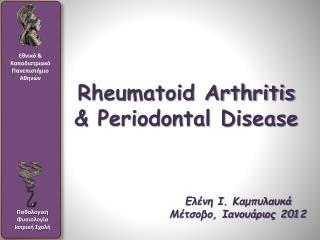 Rheumatoid Arthritis & Periodontal Disease
