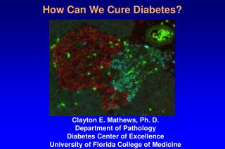 How Can We Cure Diabetes?