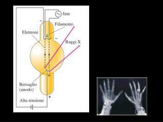 i raggi X di frenamento