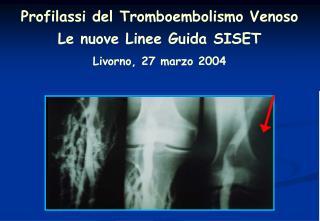 Profilassi del Tromboembolismo Venoso Le nuove Linee Guida SISET Livorno, 27 marzo 2004