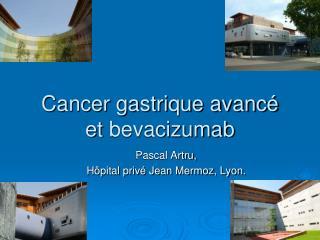 Cancer gastrique avancé et  bevacizumab