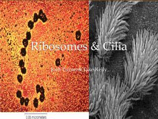 Ribosomes & Cilia