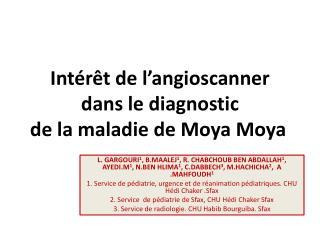 Intérêt de l'angioscanner  dans le diagnostic  de la maladie de Moya Moya