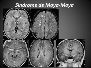Sindrome de Moya-Moya