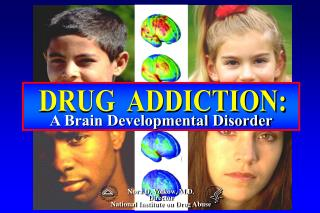 A Brain Developmental Disorder