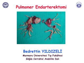 Pulmoner Endarterektomi