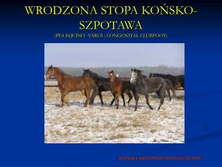 WRODZONA STOPA KOŃSKO-SZPOTAWA (PES EQUINO -VARUS ; CONGENITAL CLUBFOOT)