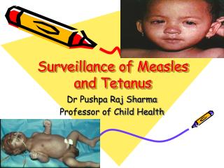 Surveillance of Measles and Tetanus
