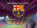 Metastatic bone tumor