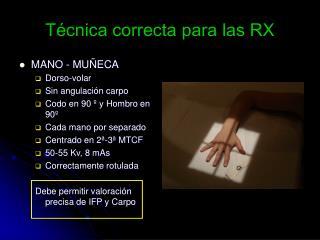 Técnica correcta para las RX