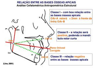 RELAÇÃO ENTRE AS BASES ÓSSEAS APICAIS Análise Cefalométrica Antropométrica Estrutural