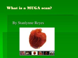 What is a MUGA scan?