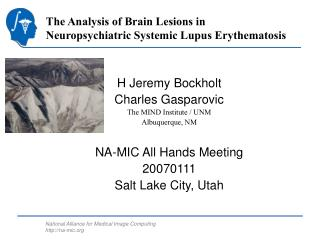 The Analysis of Brain Lesions in Neuropsychiatric Systemic Lupus ...