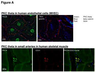 PKC theta in human endothelial cells (MVEC)