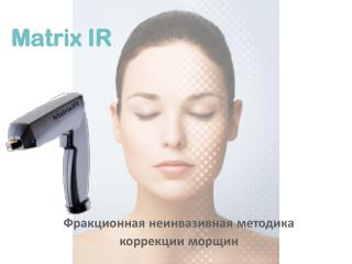 Matrix IR