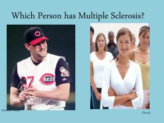 Which Person has Multiple Sclerosis?