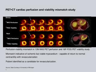 PET CT cardiac perfusion and viability mismatch study