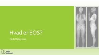 Hvad er EOS?