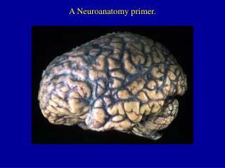 A Neuroanatomy primer.