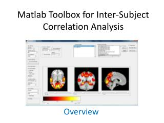 Matlab Toolbox for Inter-Subject Correlation Analysis