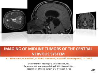 IMAGING OF MIDLINE TUMORS OF THE CENTRAL NERVOUS SYSTEM
