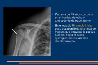 Paciente de 49 años con dolor en el hombro derecho y antecedente de traumatismo.