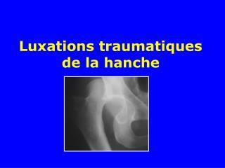 Luxations traumatiques de la hanche