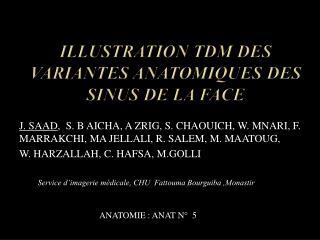 ILLUSTRATION TDM DES VARIANTES ANATOMIQUES DES SINUS DE LA FACE