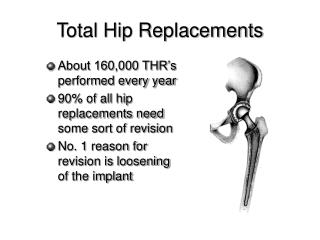 Total Hip Replacements