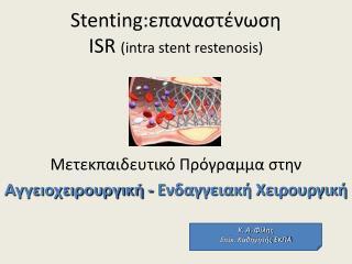 Stenting: επαναστένωση ISR  (intra stent restenosis)
