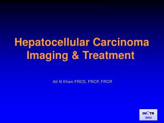 Hepatocellular Carcinoma       Imaging & Treatment