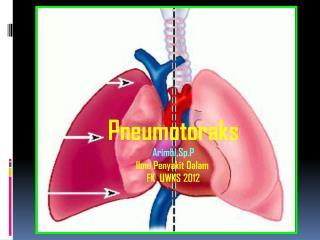 Pneumotoraks Arimbi,Sp.P Ilmu Penyakit Dalam  FK  UWKS 2012