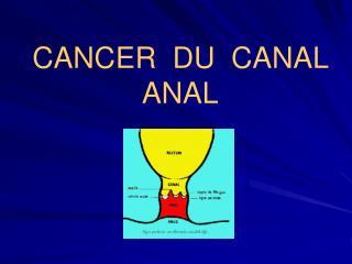 CANCER  DU  CANAL  ANAL