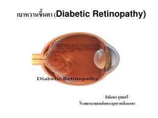 เบาหวานขึ้นตา ( Diabetic Retinopathy)