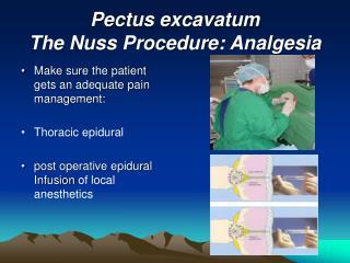 Pectus excavatum The Nuss Procedure: Analgesia