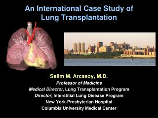 An International Case Study of  Lung Transplantation