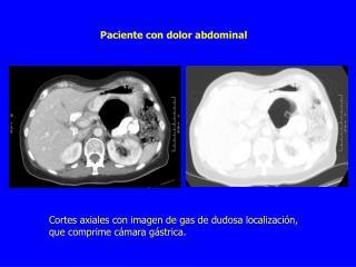 Paciente con dolor abdominal