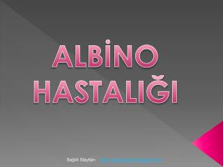 ALBİNO HASTALIĞI