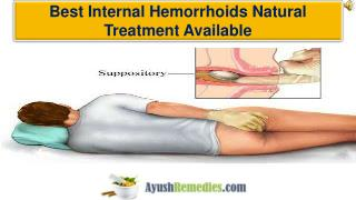 Best Internal Hemorrhoids Natural Treatment Available