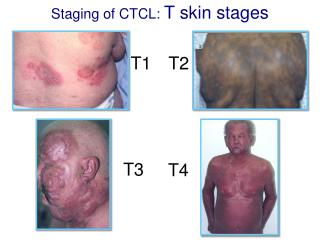 Staging of CTCL:  T skin stages