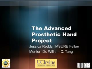 The Advanced Prosthetic Hand Project