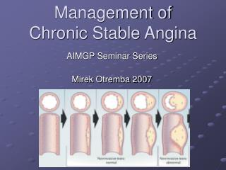 Management of  Chronic Stable Angina