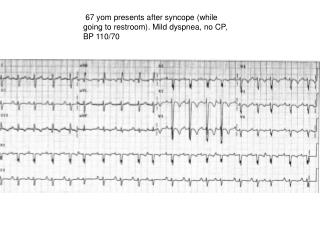 67 yom presents after syncope (while going to restroom). Mild dyspnea, no CP, BP 110/70